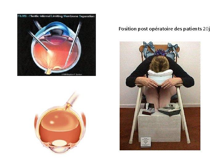 Position post opératoire des patients 20 j