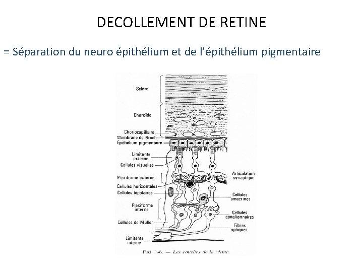 DECOLLEMENT DE RETINE = Séparation du neuro épithélium et de l'épithélium pigmentaire