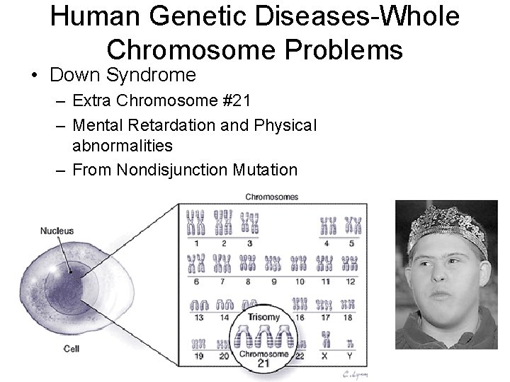 Human Genetic Diseases-Whole Chromosome Problems • Down Syndrome – Extra Chromosome #21 – Mental