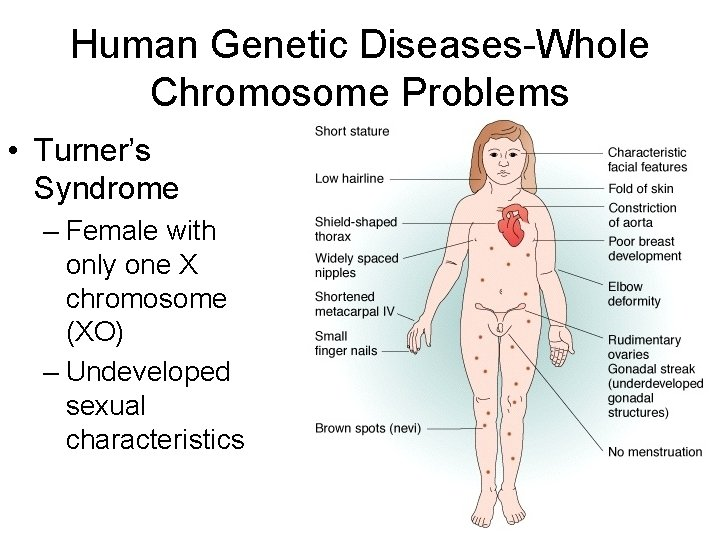 Human Genetic Diseases-Whole Chromosome Problems • Turner's Syndrome – Female with only one X