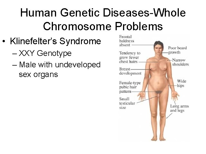 Human Genetic Diseases-Whole Chromosome Problems • Klinefelter's Syndrome – XXY Genotype – Male with