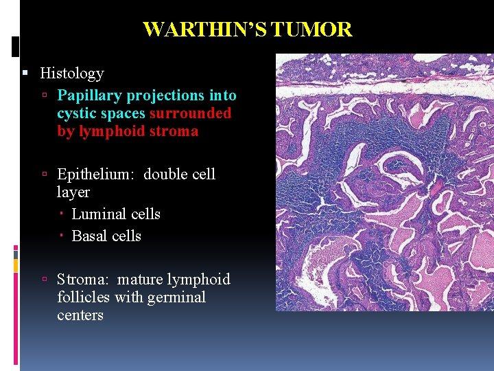 warthin's tumor histology
