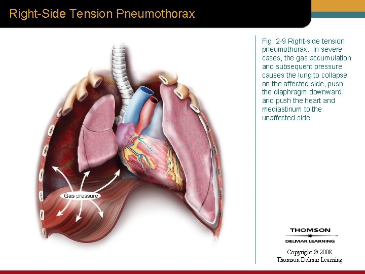 Right-Side Tension Pneumothorax Fig. 2 -9 Right-side tension pneumothorax. In severe cases, the gas