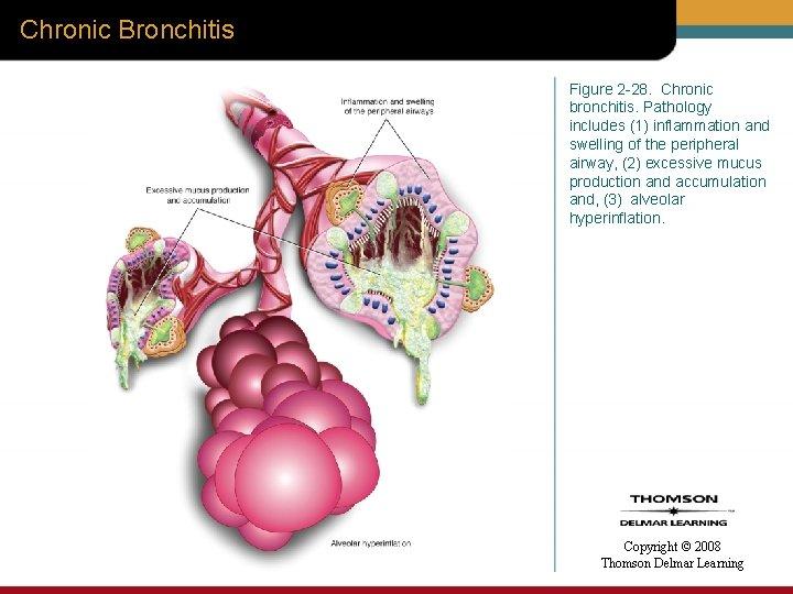 Chronic Bronchitis Figure 2 -28. Chronic bronchitis. Pathology includes (1) inflammation and swelling of