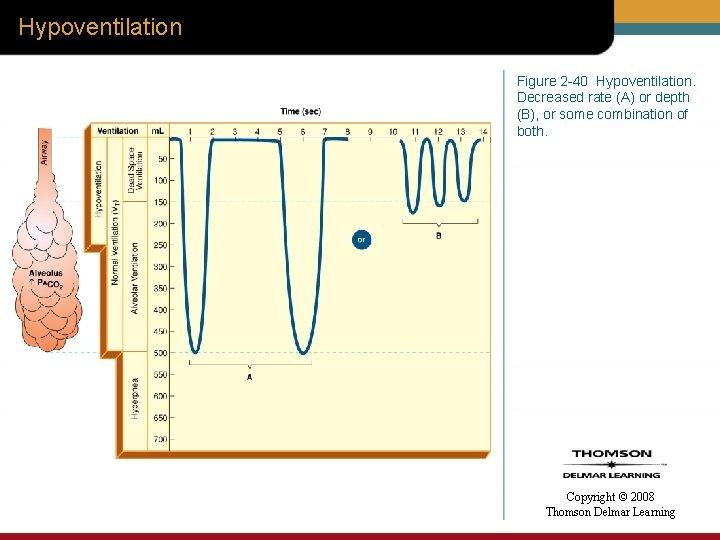 Hypoventilation Figure 2 -40 Hypoventilation. Decreased rate (A) or depth (B), or some combination