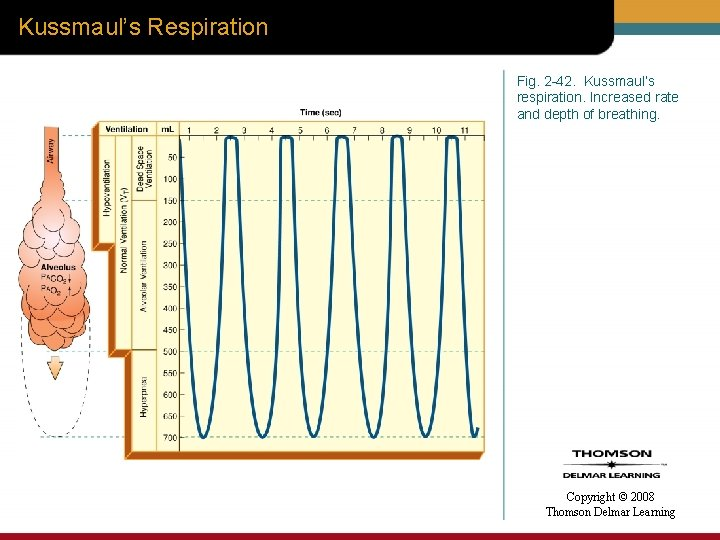 Kussmaul's Respiration Fig. 2 -42. Kussmaul's respiration. Increased rate and depth of breathing. Copyright