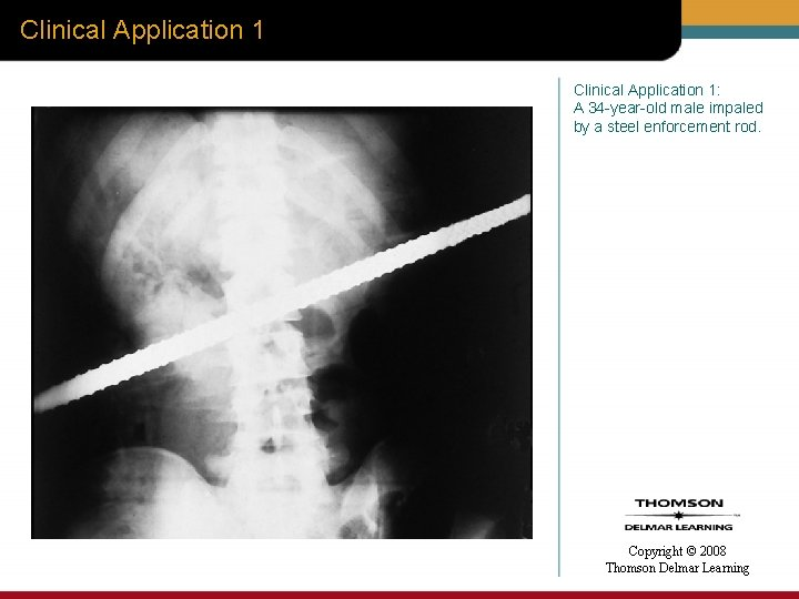 Clinical Application 1: A 34 -year-old male impaled by a steel enforcement rod. Copyright