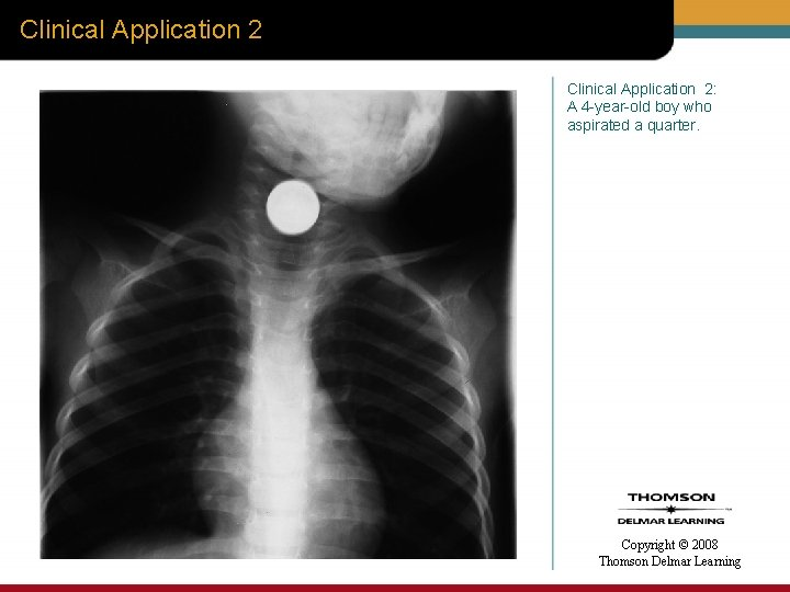 Clinical Application 2: A 4 -year-old boy who aspirated a quarter. Copyright © 2008
