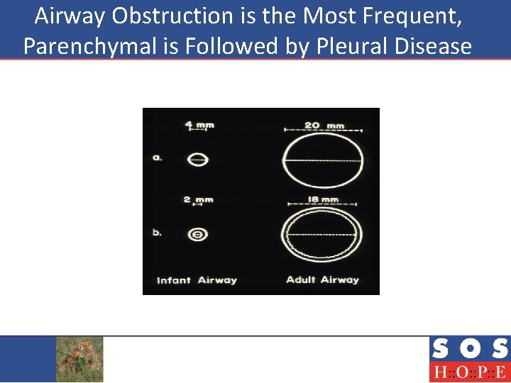 Airway Obstruction is the Most Frequent, Parenchymal is Followed by Pleural Disease