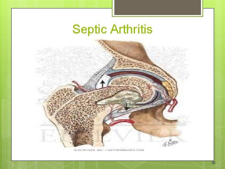 Septic Arthritis 23