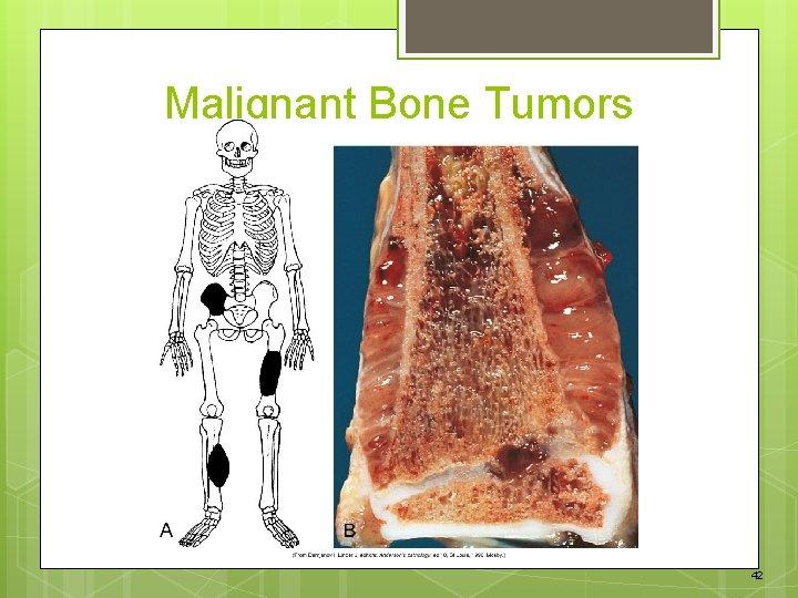 Malignant Bone Tumors 42