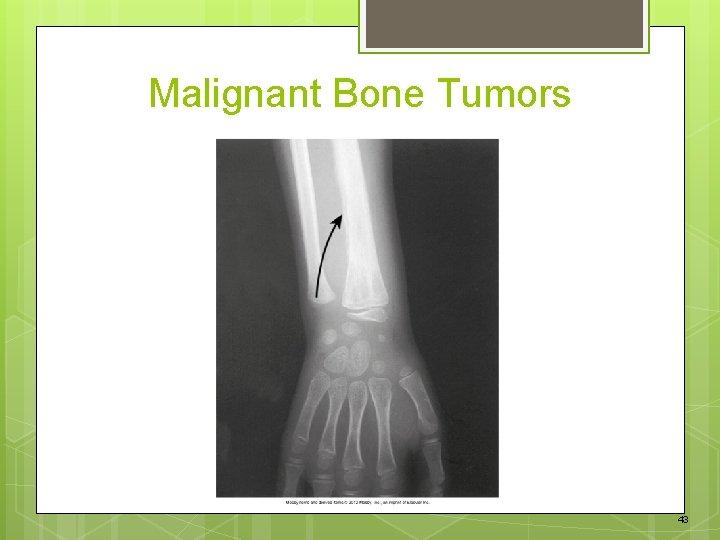 Malignant Bone Tumors 43