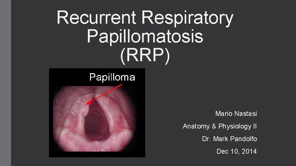 treatment for respiratory papillomatosis)