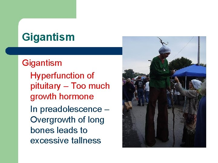 Gigantism Hyperfunction of pituitary – Too much growth hormone In preadolescence – Overgrowth of