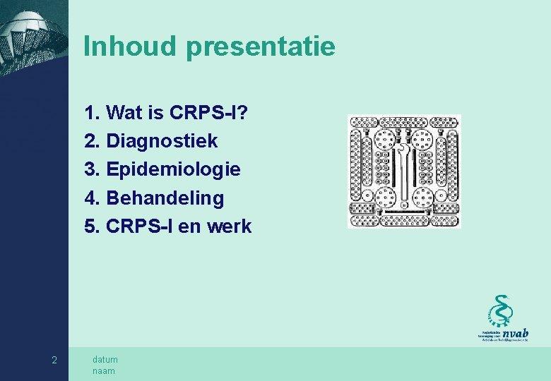 Inhoud presentatie 1. Wat is CRPS-I? 2. Diagnostiek 3. Epidemiologie 4. Behandeling 5. CRPS-I