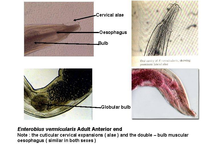 Enterobioza cervicală