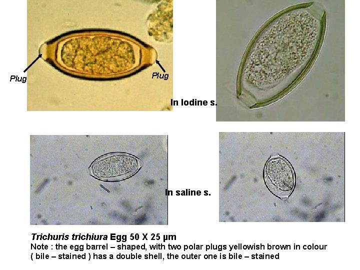 enterobius vermicularis egg)
