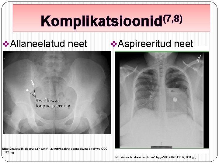 (7, 8) Komplikatsioonid v. Allaneelatud neet v. Aspireeritud neet https: //myhealth. alberta. ca/health/_layouts/healthwise/media/medical/hw/h 999