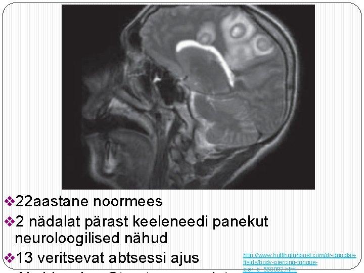 v 22 aastane noormees v 2 nädalat pärast keeleneedi panekut neuroloogilised nähud v 13