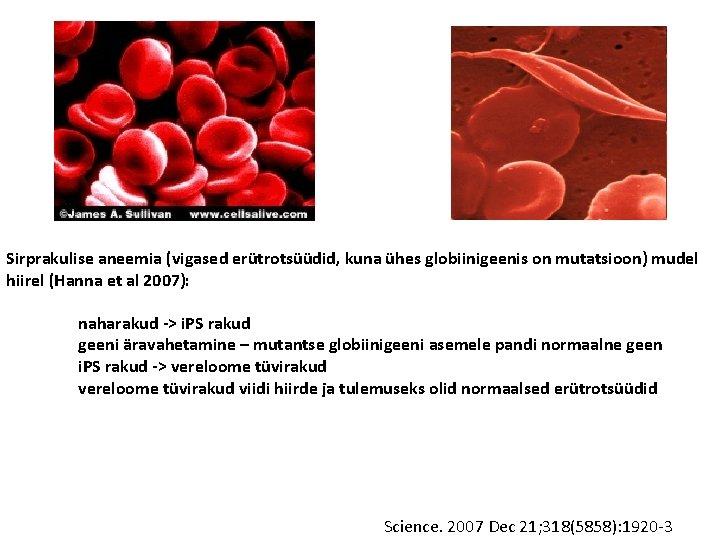 Sirprakulise aneemia (vigased erütrotsüüdid, kuna ühes globiinigeenis on mutatsioon) mudel hiirel (Hanna et al