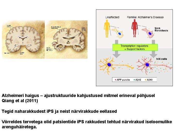 Alzheimeri haigus – ajustruktuuride kahjustused mitmel erineval põhjusel Qiang et al (2011) Tegid naharakkudest