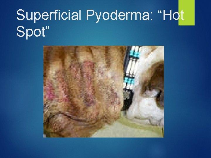 "Superficial Pyoderma: ""Hot Spot"""