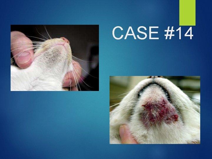 CASE #14
