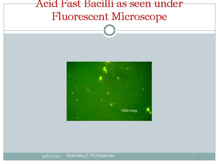 Acid Fast Bacilli as seen under Fluorescent Microscope 3/6/2021 Chukwuka, JC Tb Symposium 35