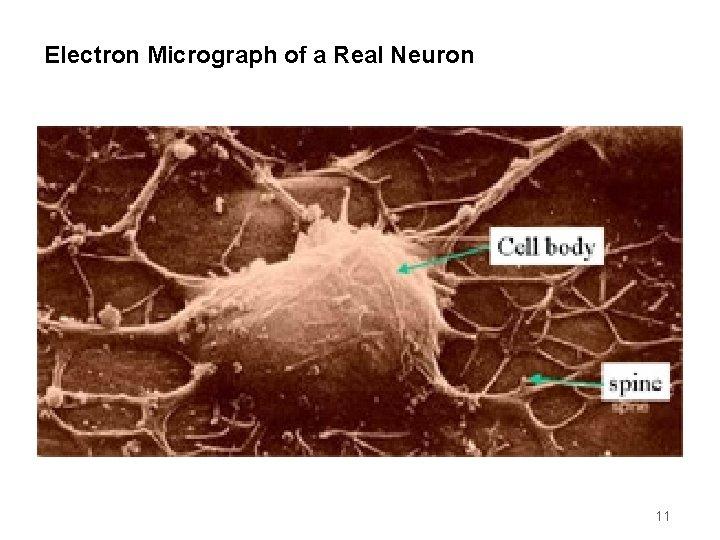 Electron Micrograph of a Real Neuron 11