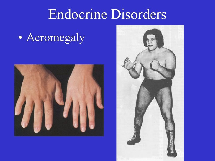 Endocrine Disorders • Acromegaly