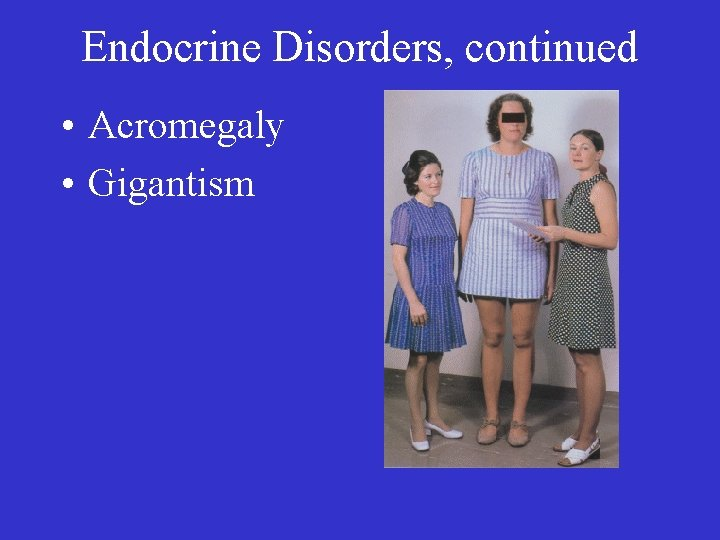 Endocrine Disorders, continued • Acromegaly • Gigantism