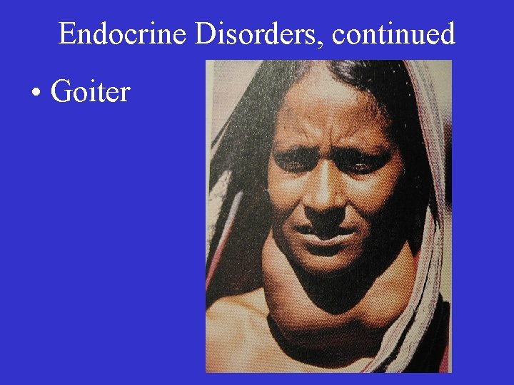 Endocrine Disorders, continued • Goiter