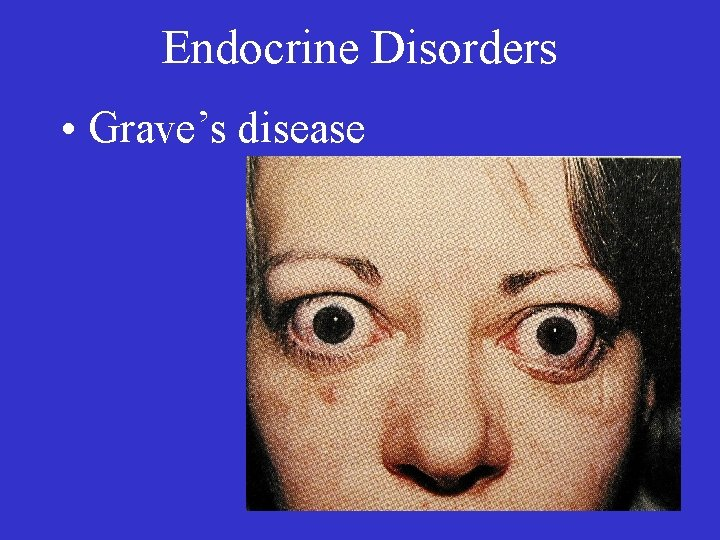 Endocrine Disorders • Grave's disease