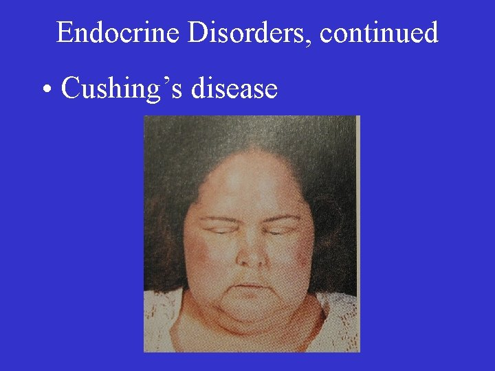 Endocrine Disorders, continued • Cushing's disease