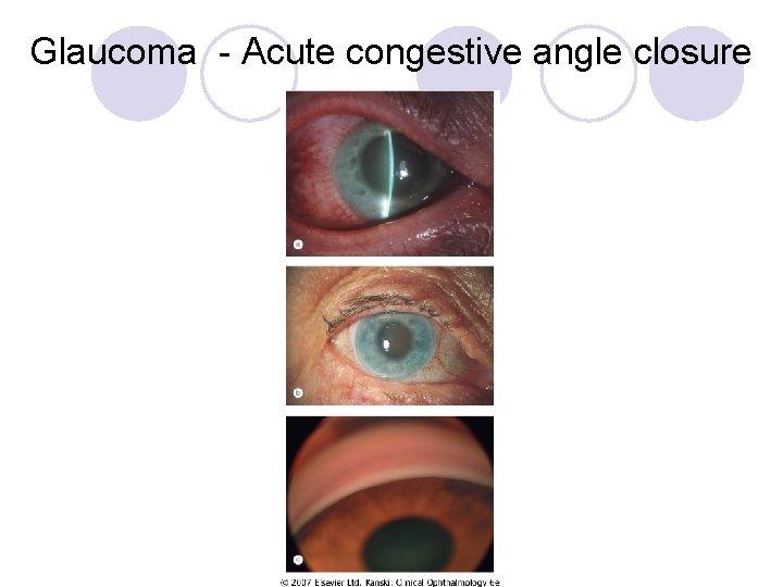 Glaucoma - Acute congestive angle closure