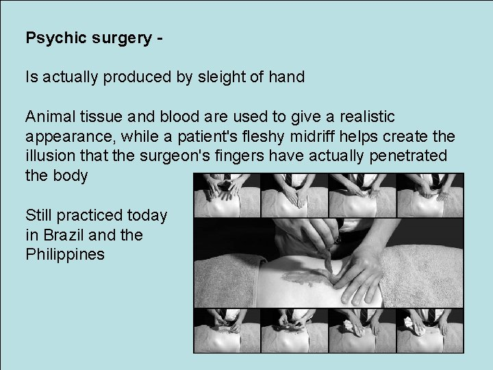Psychic surgery Is actually produced by sleight of hand Animal tissue and blood are