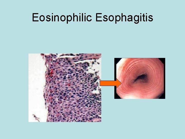 Eosinophilic Esophagitis