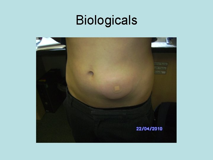 Biologicals