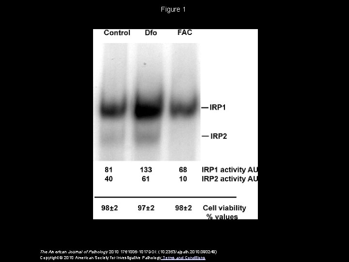 Figure 1 The American Journal of Pathology 2010 1761006 -1017 DOI: (10. 2353/ajpath. 2010.