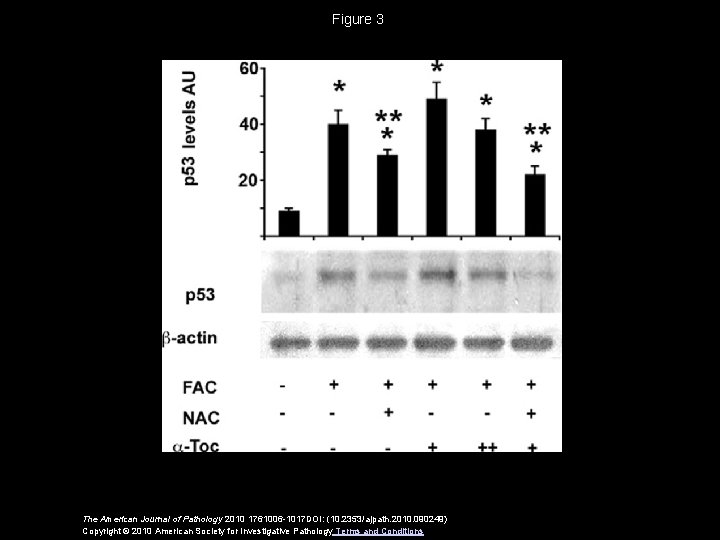 Figure 3 The American Journal of Pathology 2010 1761006 -1017 DOI: (10. 2353/ajpath. 2010.