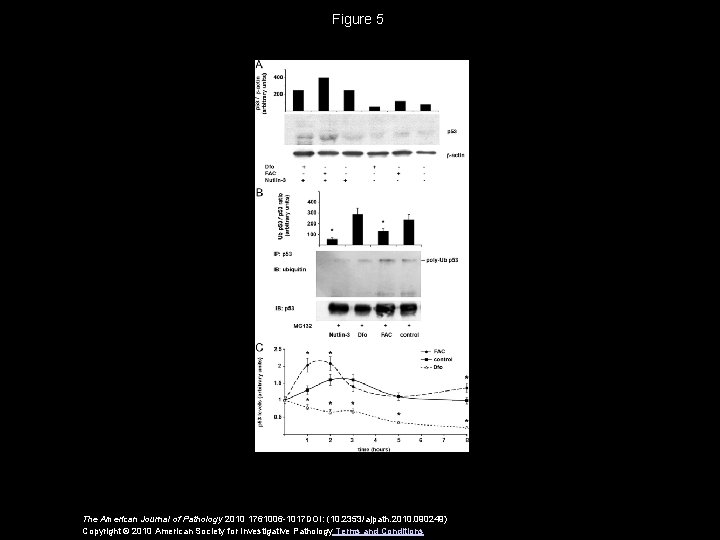 Figure 5 The American Journal of Pathology 2010 1761006 -1017 DOI: (10. 2353/ajpath. 2010.