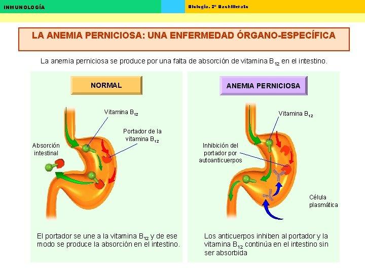 Biología. 2º Bachillerato INMUNOLOGÍA LA ANEMIA PERNICIOSA: UNA ENFERMEDAD ÓRGANO-ESPECÍFICA La anemia perniciosa se