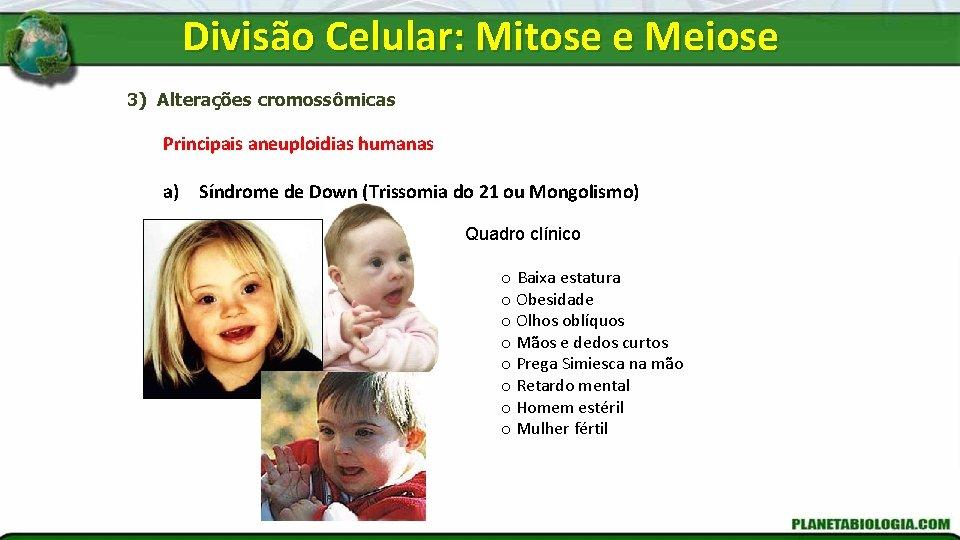 Divisão Celular: Mitose e Meiose 3) Alterações cromossômicas Principais aneuploidias humanas a) Síndrome de