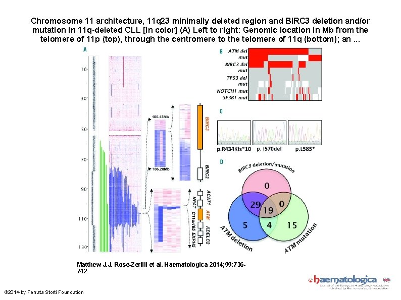 Chromosome 11 architecture, 11 q 23 minimally deleted region and BIRC 3 deletion and/or