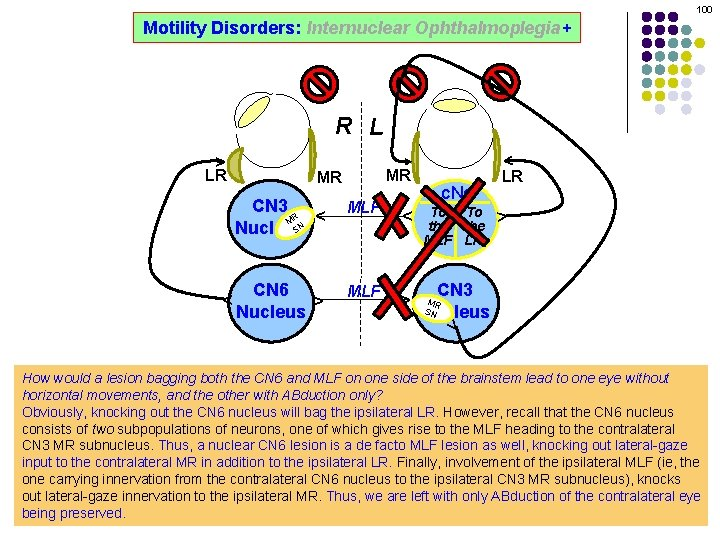 100 Motility Disorders: Internuclear Ophthalmoplegia+ MR ^ MLF ^ ^ CN 6 Nucleus MLF