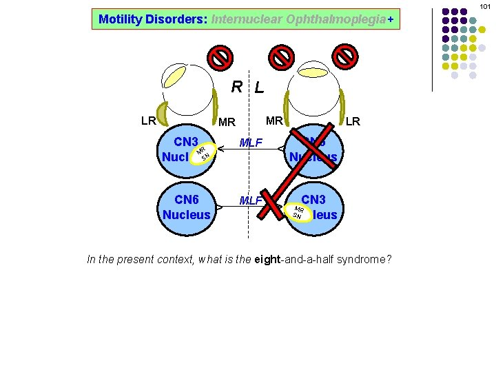 101 Motility Disorders: Internuclear Ophthalmoplegia+ R L MR CN 3 R M SN Nucleus