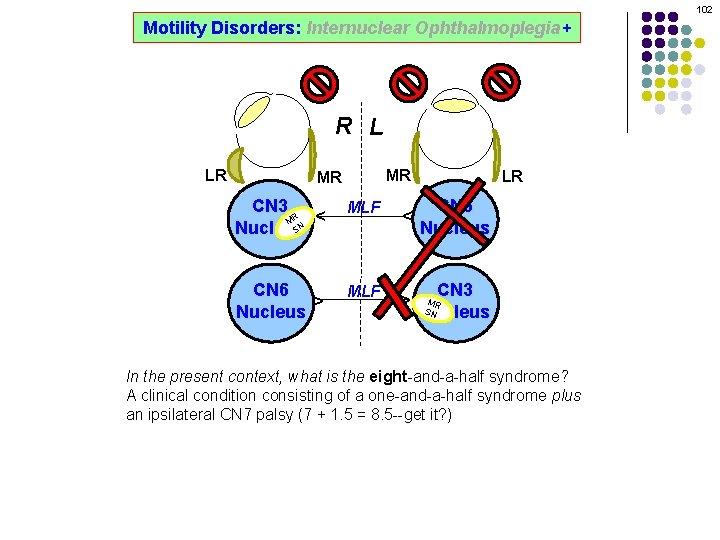 102 Motility Disorders: Internuclear Ophthalmoplegia+ R L MR CN 3 R M SN Nucleus