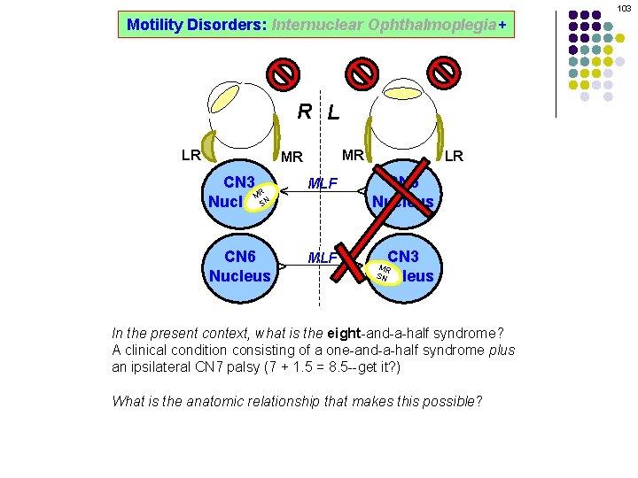 103 Motility Disorders: Internuclear Ophthalmoplegia+ R L MR CN 3 R M SN Nucleus