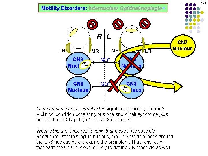 104 Motility Disorders: Internuclear Ophthalmoplegia+ R L MR CN 3 R M SN Nucleus
