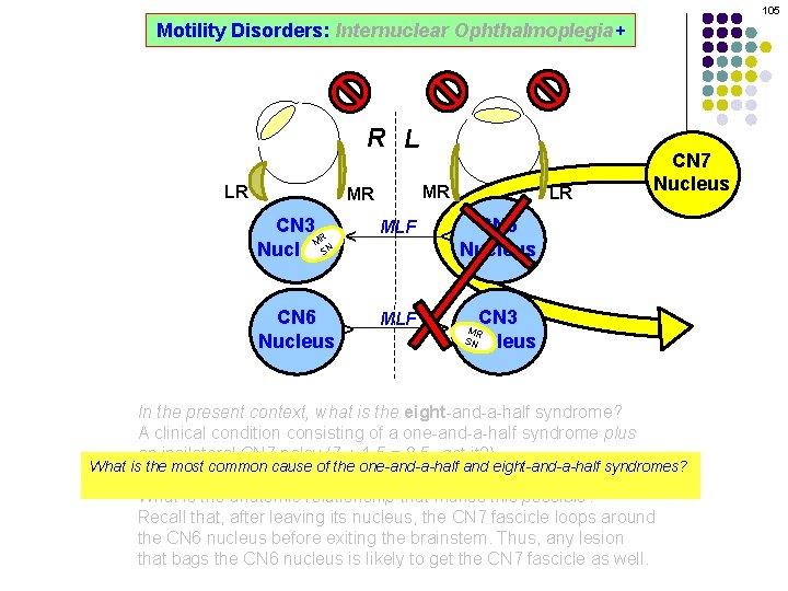 105 Motility Disorders: Internuclear Ophthalmoplegia+ R L MR CN 3 R M SN Nucleus